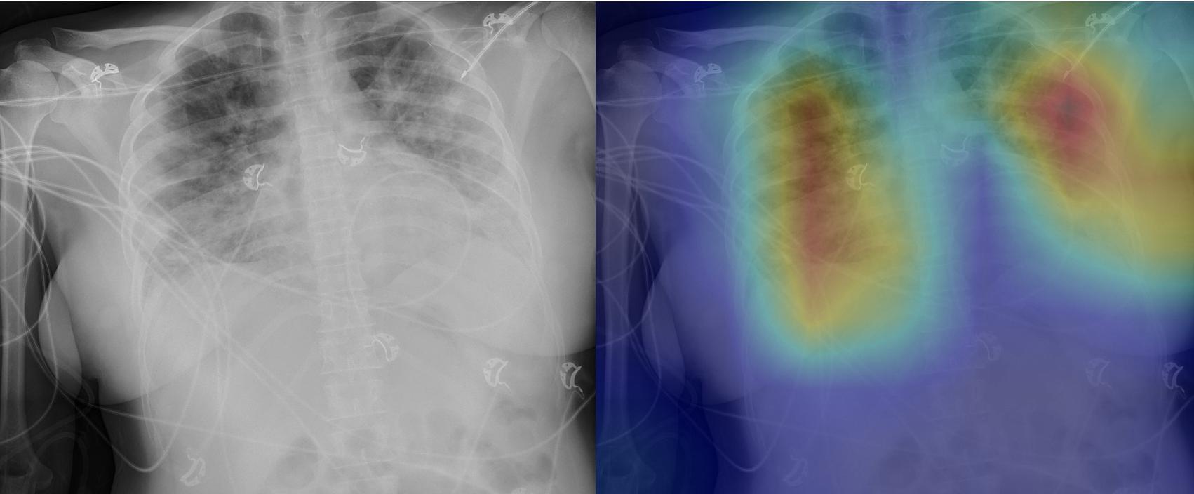 X-ray image of COVID-19 pneumonia